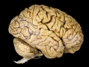 human-brain_1001_600x450